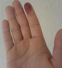 Dedo marcado